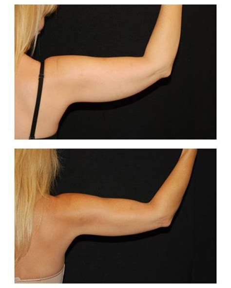 coolsculpting arms before and after pictures coolsculpting before and after just one treatment at http
