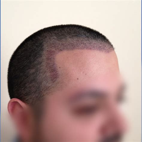 Hair Transplants In Tj Reviews | hair transplants in tj reviews hair transplant reviews for hmr