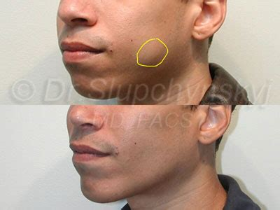 pictures of buccal fat removal newhairstylesformen2014com buccal fat removal nyc new jersey for a chiseled look