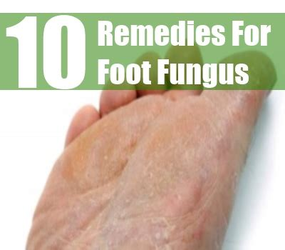 top 10 home remedies for foot fungus treatments