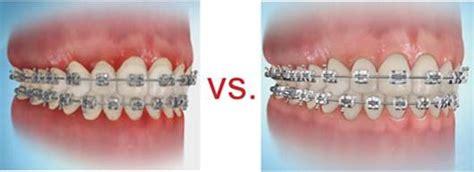 Interdental Brush Sikat Sela Ecer cara menyikat gigi untuk pemakai behel kawat gigi jb