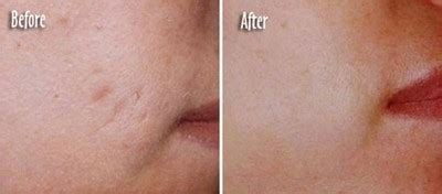 red light scar treatment photo rejuvenation with led light therapy joanna vargas