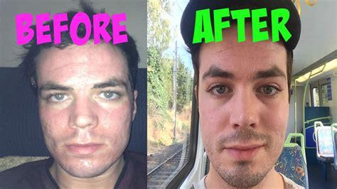 uv light for acne uv light acne scars decoratingspecial com