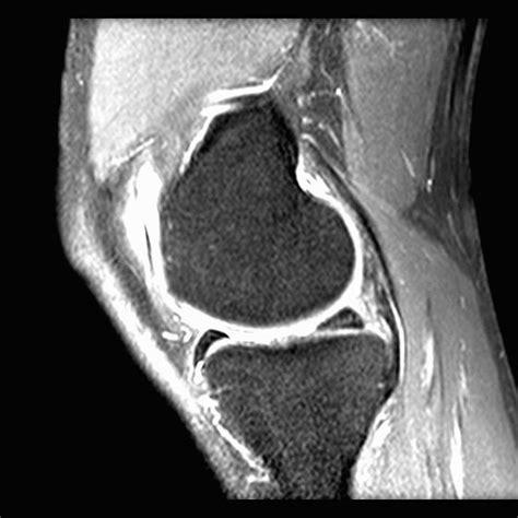 lesione corno posteriore menisco interno lesione menisco cause sintomi diagnosi trattamento