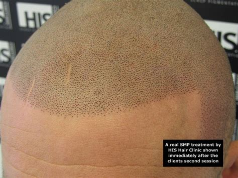 tattooed hair for bald men scalp micropigmentation hair for bald his