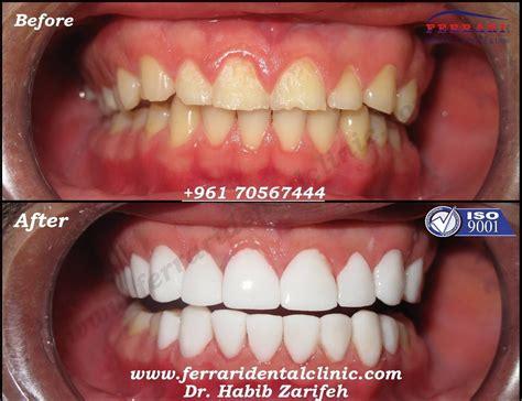 veneerslebanon the number one veneers clinic in beirut