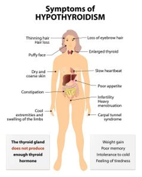 mood swings after thyroidectomy natural remedies for hypothyroidism in women mother of
