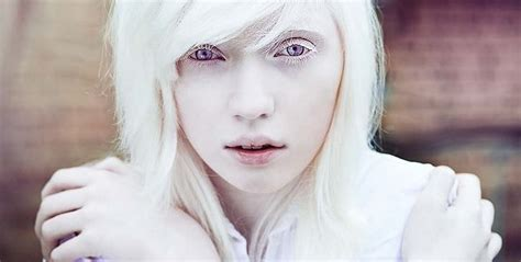what color do albinos albinism