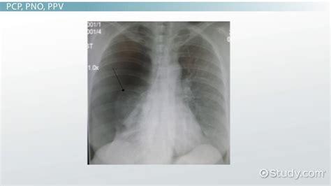 abbreviations   respiratory system   video lesson transcript studycom