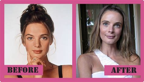 has fiona hughes had plastic surgery gabrielle anwar plastic surgery before after breast implants