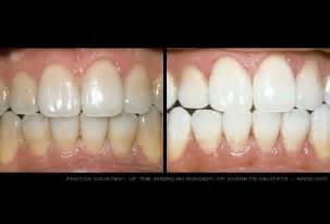 home teeth whitening teeth whitening products applicable at home