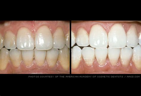 Whitening Tje dental pictures gum disease tongue problems cancer