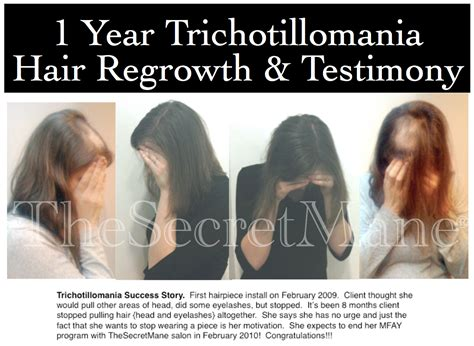 hair style for trichotillomania trichotillomania salon treatment programs
