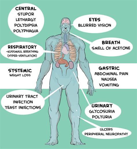 diabetes symptoms diabetes symptom