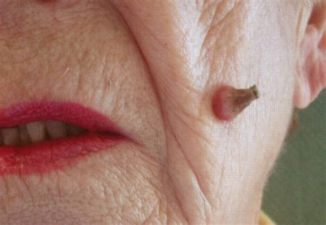cutaneous horn scabies rash pictures treatment contagious home remedies