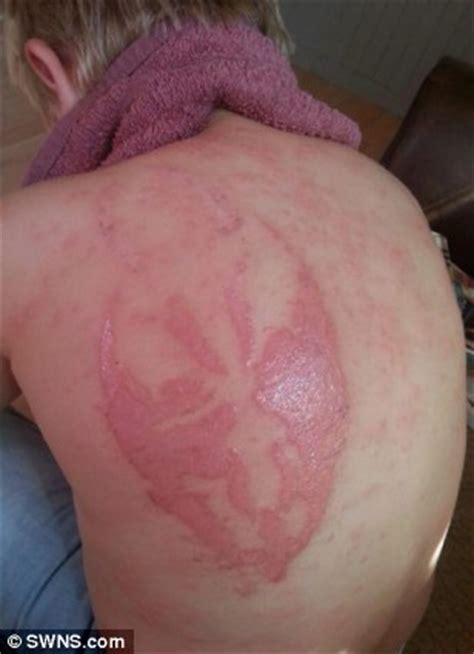 allergic reaction to henna tattoo boy 7 may be left scarred for by henna of