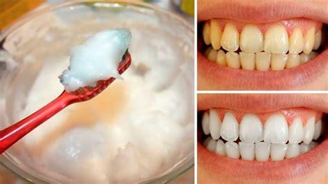 teeth whitening  home dentogums
