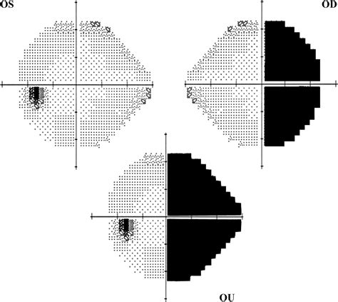 cloverleaf pattern visual field functional visual loss neurologic clinics