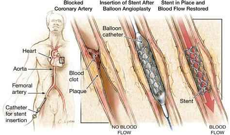 coronary angioplasty with or without stent implantation stents to treat coronary artery blockages cardiology