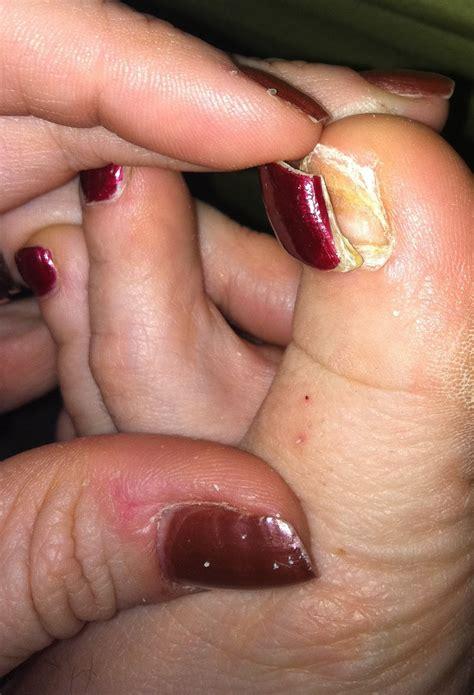 nail ripped ripped nail