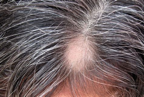 Shaved Head To Hide Graying Hair | women s hair loss pictures thinning hair causes