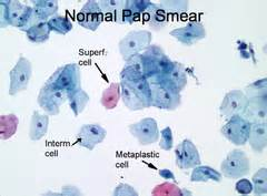 coccobacilli pap test pathology of the tract flashcards quizlet