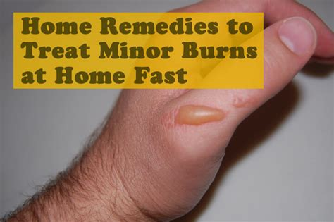 rug burn treatment home remedies how to get rid of carpet burn