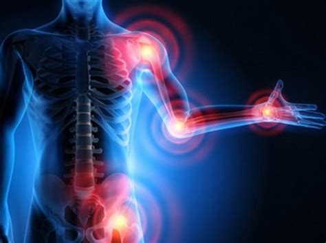 artrosi alimentazione artrosi l alimentazione pu 242 portare dei benefici