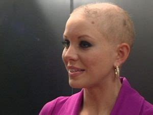 hair growth rate after chemo hair growth after chemo natural hair loss solutions brisbane