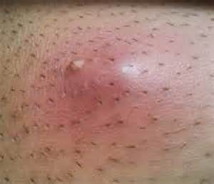 how to remove ingrown hair in thigh ingrown hair cyst groin deep infected removal home