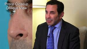 dr nassif paul nassif md endorses dean toriumi md youtube