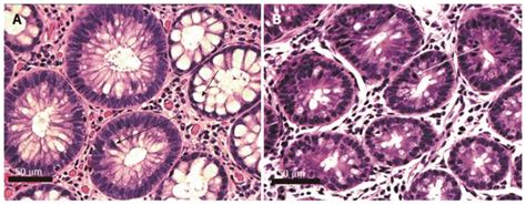 Novel Diet Related Mouse Model Of Colon Cancer Parallels