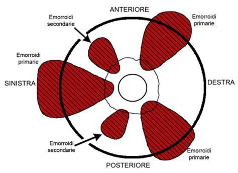 dolori emorroidi interne emorroidi cosa sono cause sintomi e trattamento