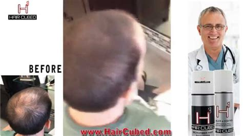 Hair Problem Solutions by Thinning Hair Problem New Solution For Hair Loss Hair