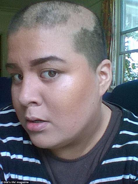 completely bald women meet sydney s tiarne menzies who went bald in her sleep