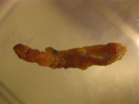 Larvae In Human Stool by Human Stool Worm Intestinal Parasites