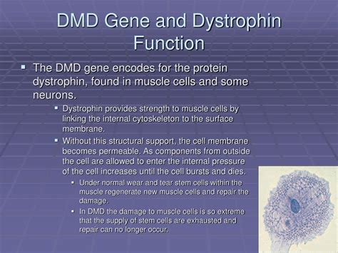 omim entry 310200 muscular dystrophy duchenne type dmd ppt duchenne muscular dystrophy powerpoint presentation
