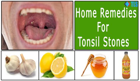 6 simple effective home remedies for tonsil stones