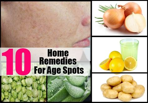 10 home remedies for age spots best treatment for age