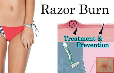 straignt or electric razor better at preventing ingrown hairs image gallery razor burn