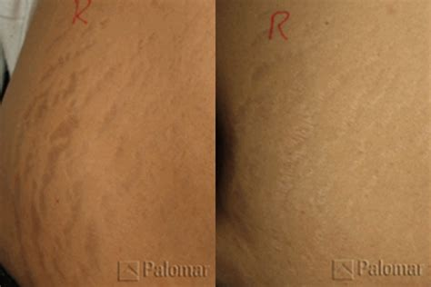 stretch marks pasadena la canada flintridge los angeles la ca