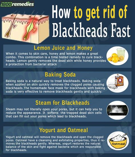 How To Get Rid Of Your Blackheads by Best 25 Blackhead Remedies Ideas On Skin Care