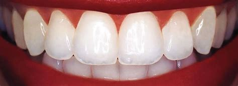 diy dental bonding dental porcelain veneers laminates new york nyc