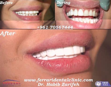 de  baesta beautiful teeth dental fillings veneers