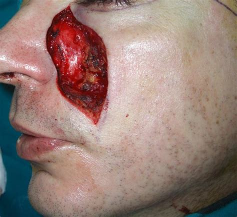 condilomi anali interni tumori cutanei