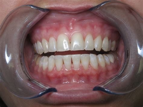 patient  nice straight teeth  wanted