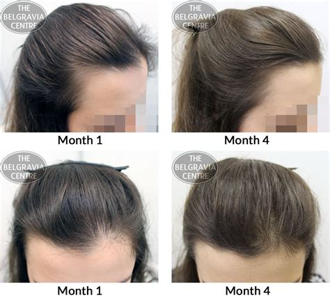how to become comfortable with your uality belgravia hair loss blog