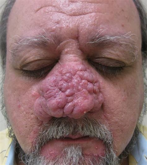how to cure a red swollen nose rosacea support group phymatous rosacea