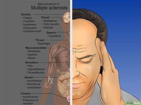 bruciore e formicolio alla testa come diagnosticare la sclerosi multipla 9 passaggi