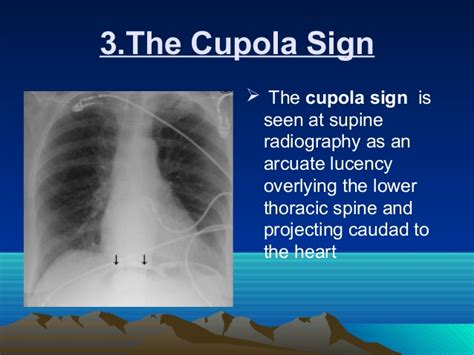 Cupola Sign radiology signs